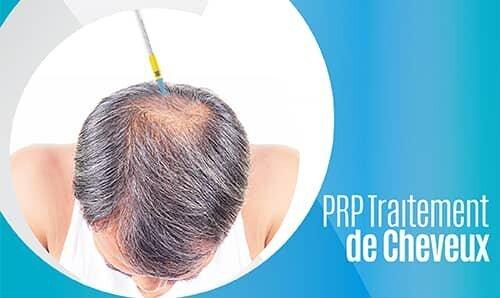 PRP Traıtement de Cheveux-02