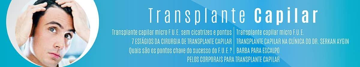 Transplante Capilar-01