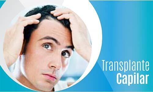 Transplante Capilar-02