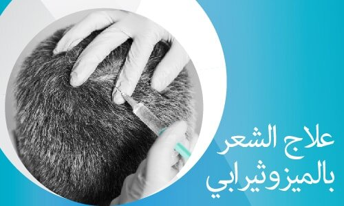 علاج الشعر بالميزوثيرابي-02
