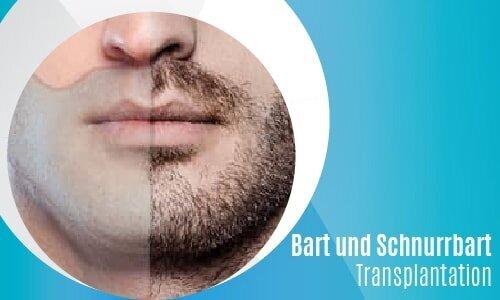 Bart und Schnurrbart Transplantation-02