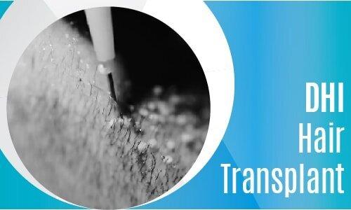 DHi Hair Transplant-Mobil