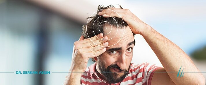 What to Expect From the FUE Hair Transplant Procedure