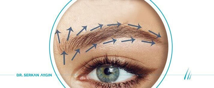 Eyebrow Transplant with FUE Method | Fue Technique Eyebrow Transplant