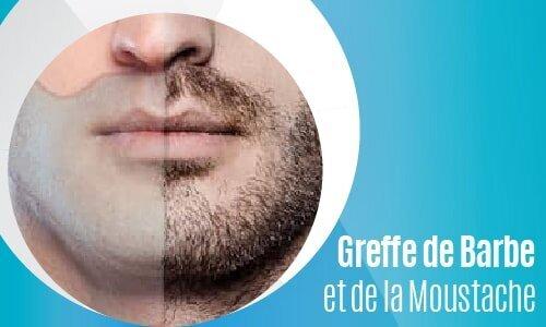 Greffe de Barbe et de la Moustache-02