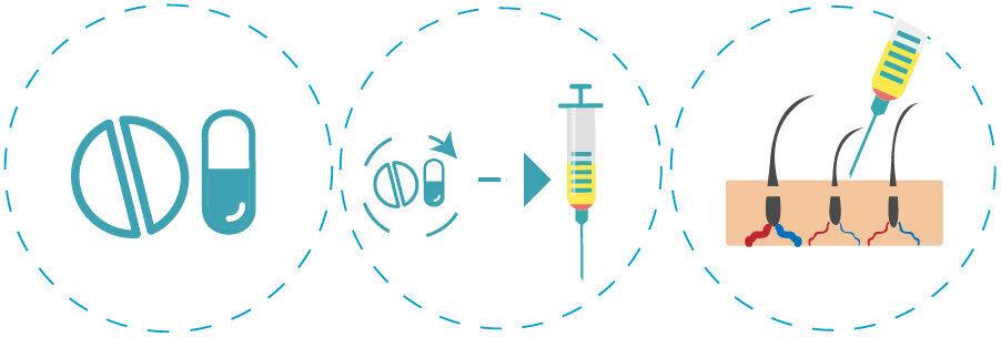 l'infographie des étapes de l'application de la mésothérapie capillaire