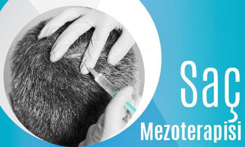 Sac mezoterapisi-02