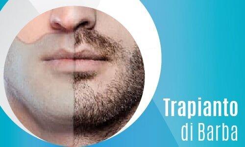 Trapianto di Barba-02