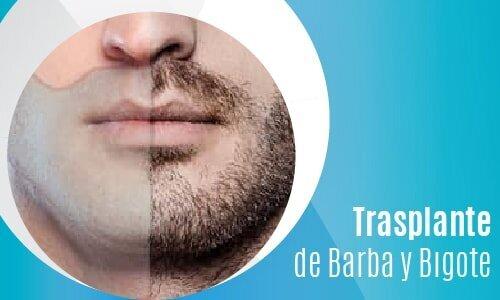 Trasplante de Barba y Bıgote-02