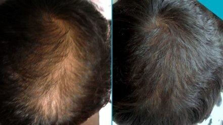 Exemples de photos sur l'augmentation des mèches de cheveux qui s'épaississent après une mésothérapie capillaire