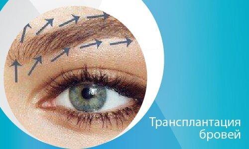 Трансплантация бровей-02