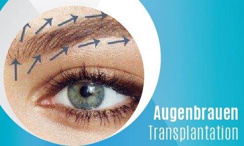 Augenbrauen-Transplantation-02