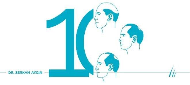 Dunya Genelinde En Sik Karsilasilan 10 Sac dokulmesi Tipi