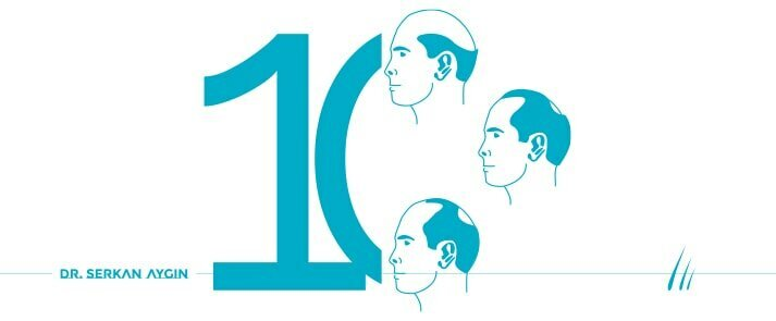 Types of Hair Loss, 10 types of Hair Loss