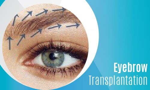 Eyebrow Transplantation-02