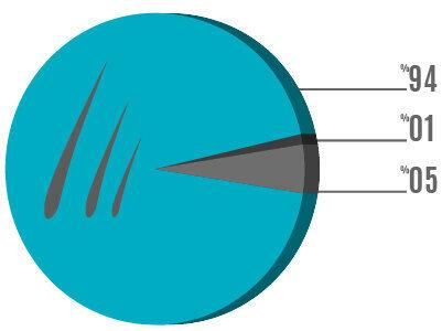 Λόγος Προτιμήσεων των Μεταμοσχεύσεων Μαλλιών χωρίς Ξύρισμα