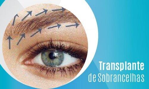 Transplante de Sobrancelhas-02