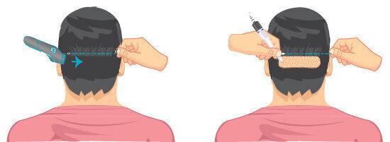 μερικώς ξυρισμένη μεταμόσχευση μαλλιών