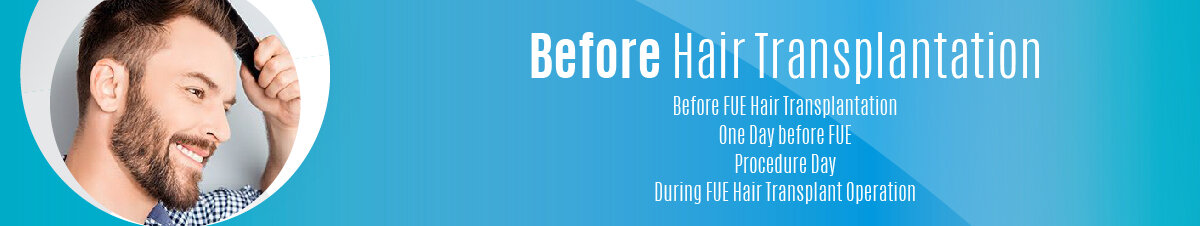 Before Hair Transplantation-01