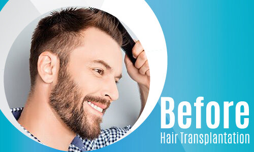 Before Hair Transplantation-02