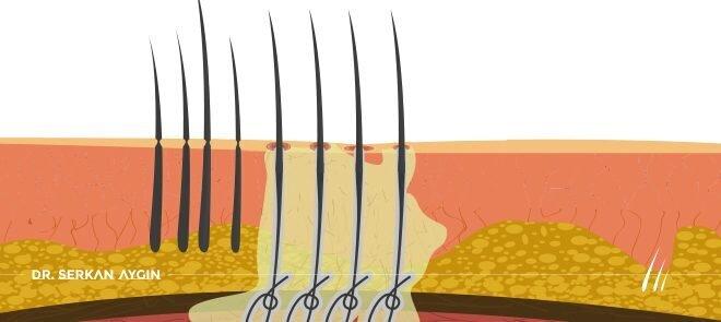 Bio fiber saç ekimi