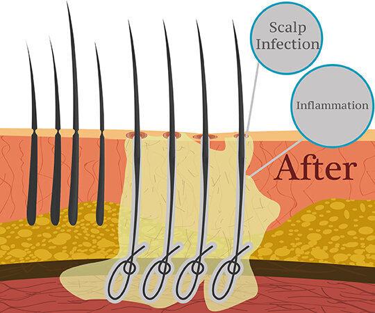 Powikłania związane z przeszczepami włosów z włókien biologicznych po