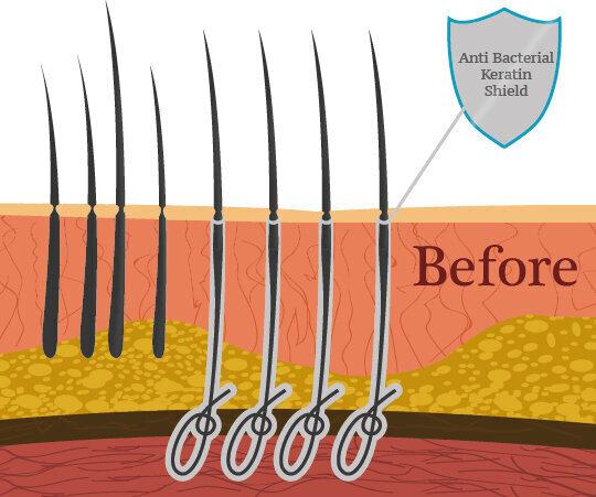 Powikłania związane z przeszczepami włosów z włókien biologicznych przed