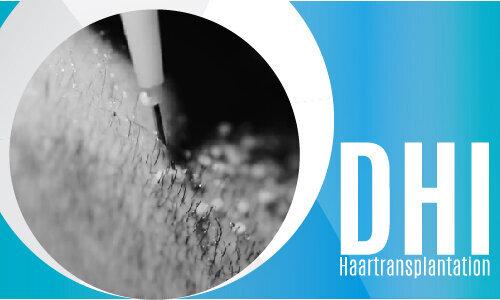 DHI Haartransplantation-02