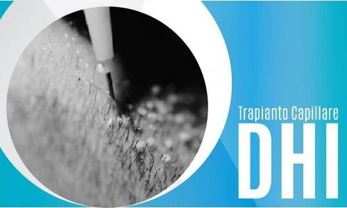 Trapianto Capillare DHI-02