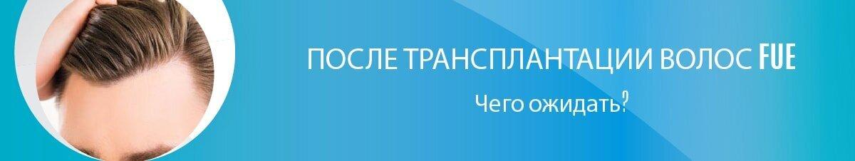 ПОСЛЕ ТРАНСПЛАНТАЦИИ ВОЛОС FUE-01