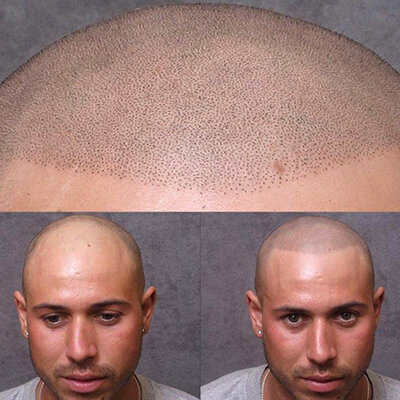 Hair Simulation / Scalp Micropigmentation / Hair Tattoo