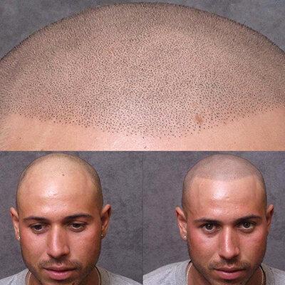 Приложение на микропигментация при напълно обръсната глава