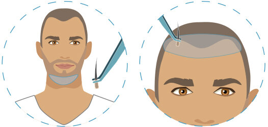 infographic showing hair transplant using body hair extracted from beard area