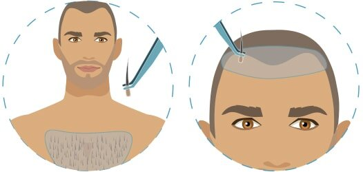 infographic showing hair transplant using body hair extracted from chest area