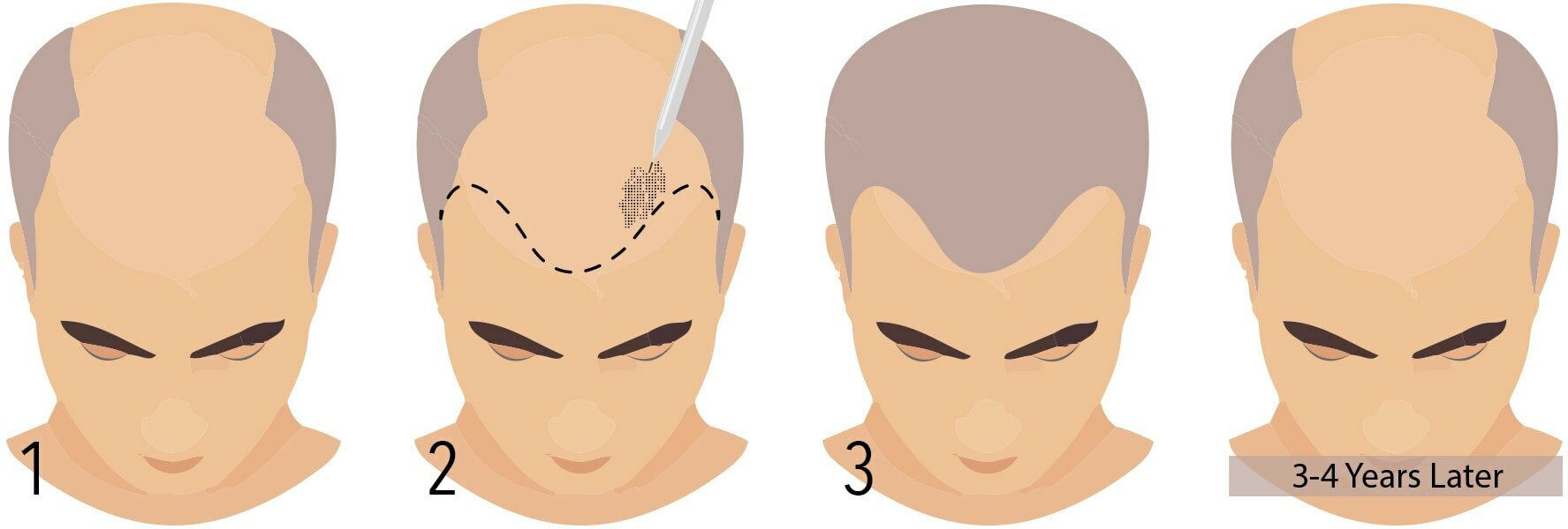 sac similasyonu-mikropigmentasyon