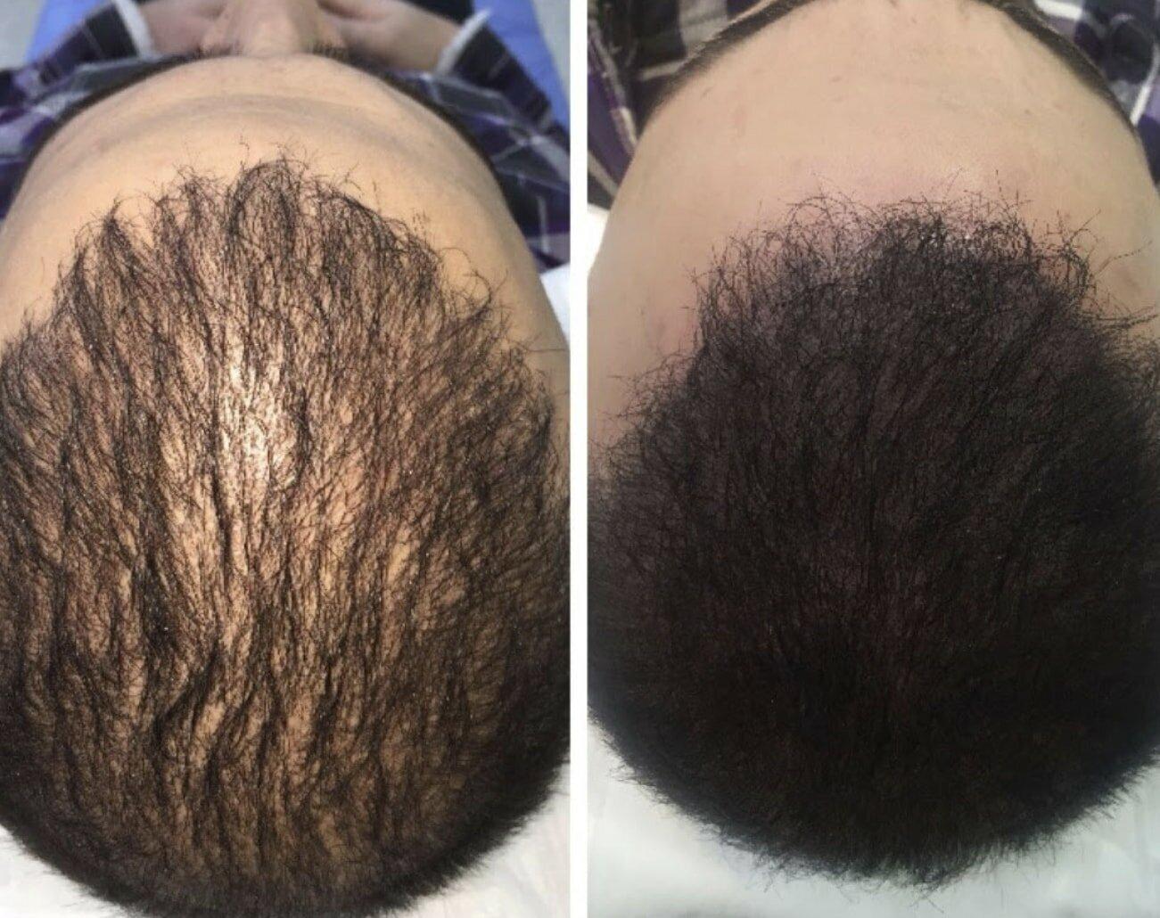 Приложение на микропигментация при дълга коса