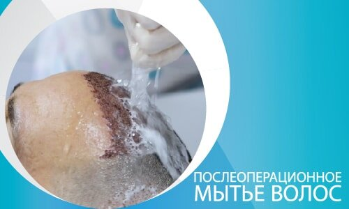 Послеоперационное мытье волос-02