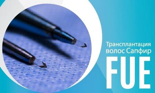 Трансплантация волос Сапфир FUE-02