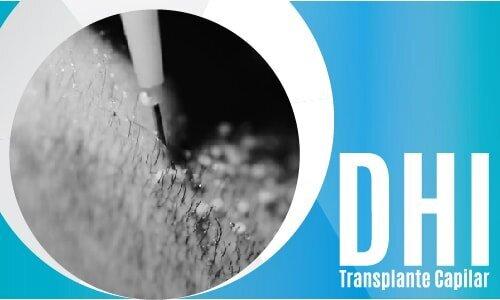 DHI Transplante Capilar-02