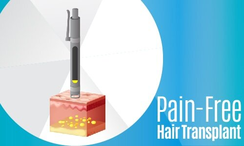 Painless, Pain-Free Hair Transplant, Needle-Free Hair Transplant, Hair Transplant With Sedation-02-min