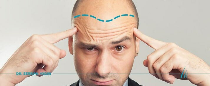 10 False Facts About Hair Transplantation