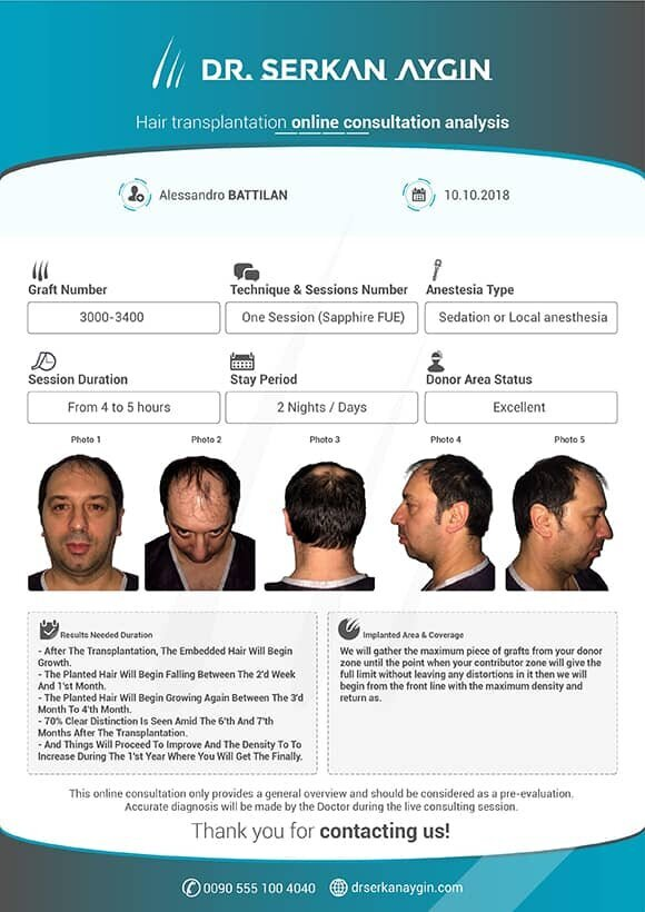 analysis report on  hair transplant