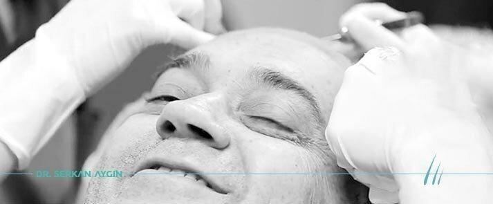Безболезнено, безболезнена трансплантация на коса, безиглен метод за присаждане на коса, присаждане на коса с упойка