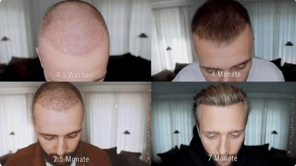 Hair Transplant Process of Philipp S.
