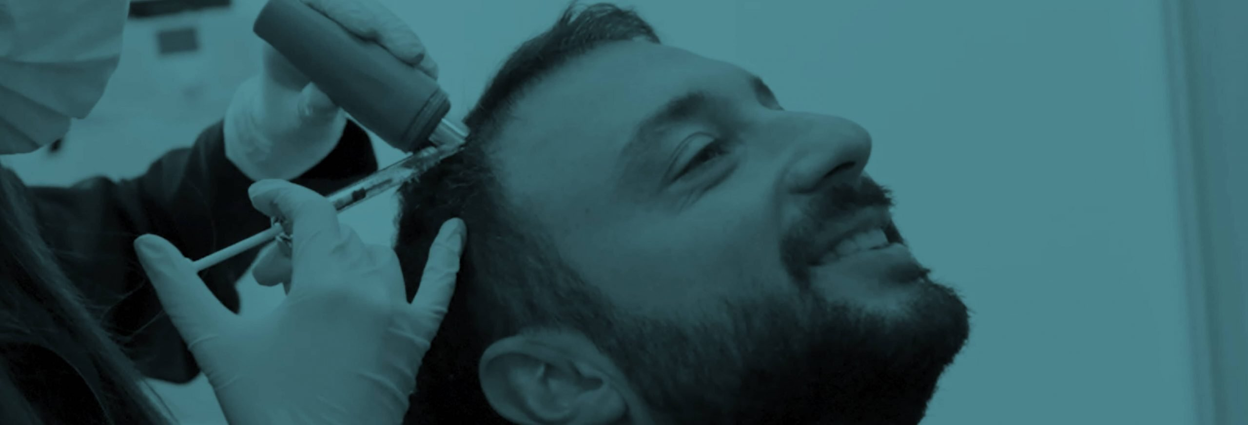 Mesotherapy Treatment for Hair Loss