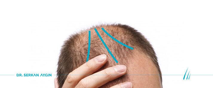 Androgenetic Alopecia Condition In Men